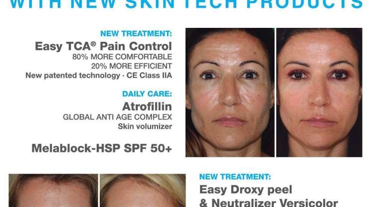 Best Results από τη Skin Tech!